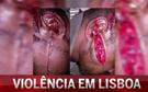 Veja como ficou o jovem agredido na rixa em Santos