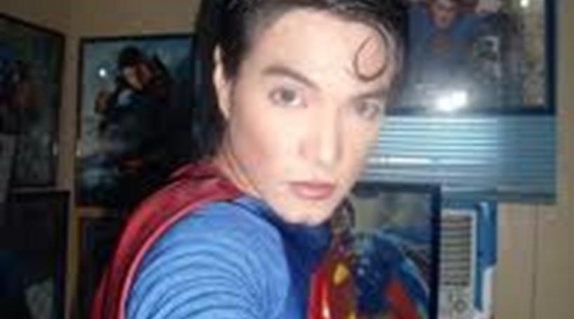 Filipino faz plásticas para ficar igual ao 'Super-Homem'