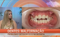 Malformação dentária