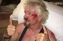 Richard Branson ferido em acidente de bicicleta