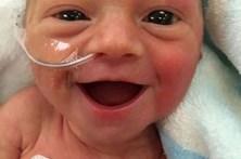 Sorriso de bebé recém-nascida conquista internet