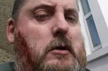 Tira selfie ensanguentado após esfaquear homem 33 vezes