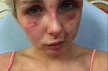 Espancada pelo namorado por causa de cigarro