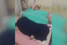 Egípcia pesa 500 kg e não sai de casa há 25 anos