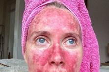 Fica com a cara queimada após anos de solário