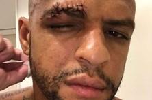 Cara de Felipe Melo maltratada após choque com colega