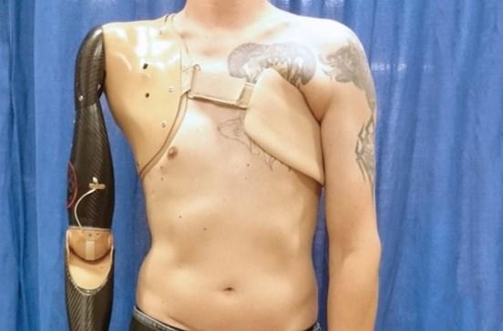 Cientistas desenvolvem prótese para braço que recebe impulsos da espinal medula