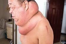 Fica com tumor gigante após recorrer à medicina tradicional chinesa
