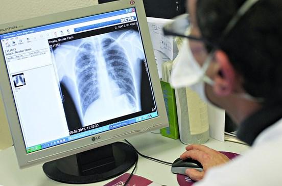 Risco de tuberculose em doentes crónicos