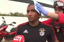 Veja como ficou o adepto do Benfica agedido junto à Luz