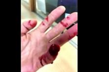 Arranca dedo de polícia à dentada em operação stop