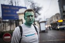 Principal opositor de Putinhospitalizado olho queimado