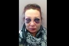 Vítima de violência doméstica tira 'selfies' para se sentir melhor