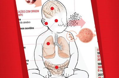 Tudo o que precisa saber sobre o sarampo
