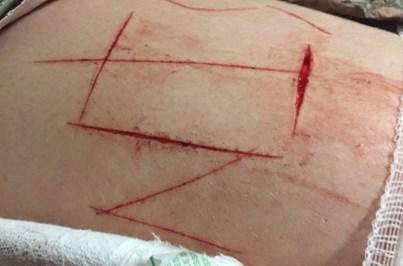 Nova vítima do 'Jogo da Morte' internada em Setúbal