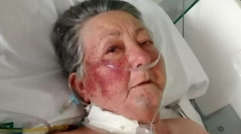 Idosa espancada por enfermeiro em hospital