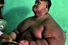 Rapaz de 10 anos pesa 190 quilos