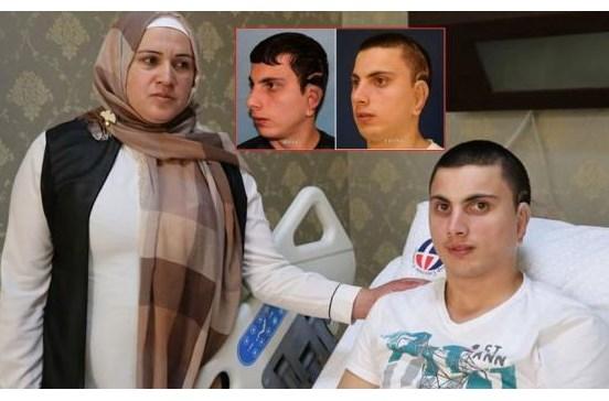 Homem recebe orelhas produzidas com cartilagem da mãe