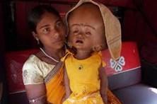 Morreu a menina que tinha a cabeça duas vezes maior que o normal