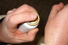'Spray' contra dor de picadas de agulha é o melhor analgésico mas o menos usado