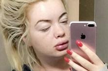 Jovem euromilionária irreconhecível após alergia a cirurgia plástica
