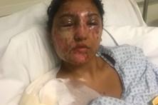 Jovem de 21 anos atacada com ácido no dia do aniversário