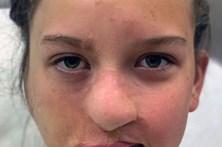 Jovem atacada por guaxinim fica sem nariz