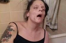 Partilha foto drogada para alertar jovens