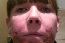 Fica desfigurada após tratamento para o rosto