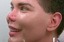 'Ken humano' faz nova operação apesar do risco de ficar sem nariz