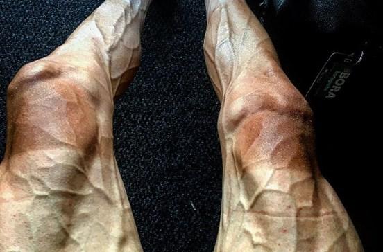 Assim ficaram as pernas de um ciclista após 16 etapas da Volta a França