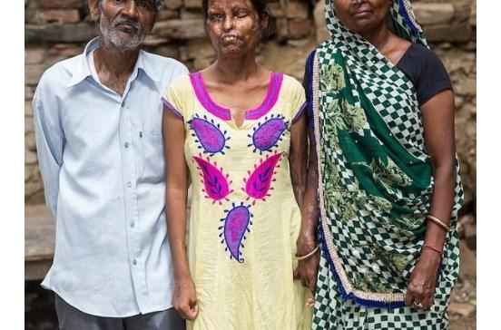 Mãe e filha desfiguradas com ácido vivem com pai atacante
