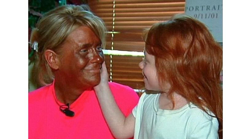 Mãe que levou filha de 6 anos ao solário furiosa com escaldão da menina na escola