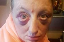 Viola mulher e tortura-a com chave de fendas durante dois dias