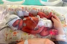 Grávida sacrifica gémeos siameses para salvar o filho