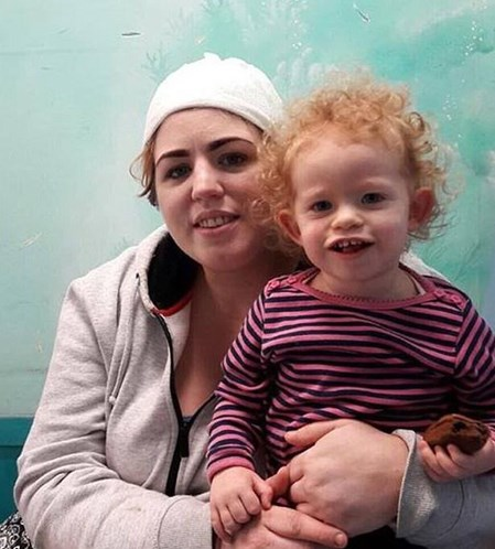 Mulher perde parte do couro cabeludo ao usar 'kit unicórnio'