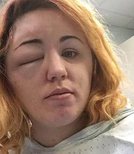 Mulher sofre queimaduras e perde parte do couro cabeludo ao usar química