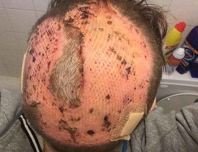 Fotos: Mulher sofre dano capilar irreversível após tingir cabelo