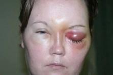 Parasita em lente de contacto cega mulher