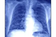 """Mortalidade por cancro do pulmão nas mulheres regista """"aumento significativo"""""""