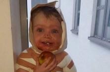 Bebé fica com a cara queimada após entornar chá a ferver