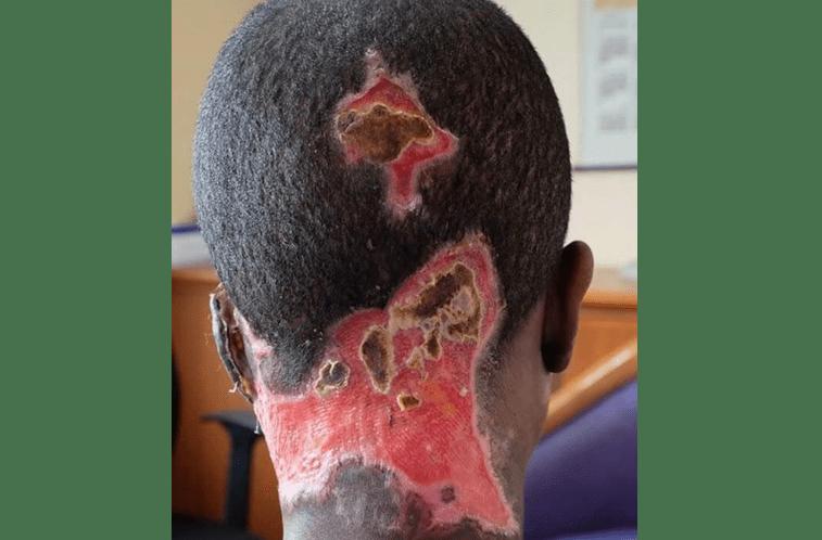 Derrete a cara da mulher com ácido em frente ao filho  Img_757x498$2017_09_02_08_25_35_663882_im_636399376346738232