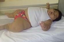 Bebé de 10 meses pesa 30 quilos