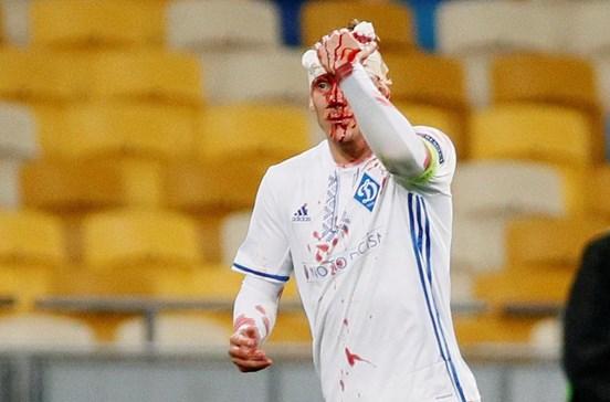 Jogador ferido obrigado a abandonar jogo da Liga Europa