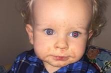 Bebé luta pela vida depois de apanhar herpes com um beijo