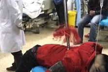 Homem perfurado por lança de quase dois metros sobrevive por milagre