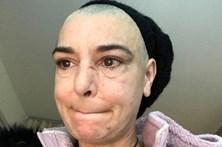 Filho bate em Sinéad O'Connor parte-lhe um tornozelo