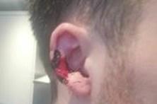 Morde e rasga orelha de jovem por causa de telefonema