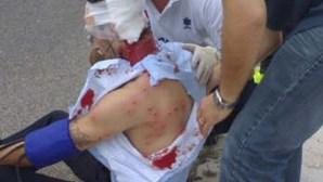 Polícias feridos em serviço perdem 200 euros por mês