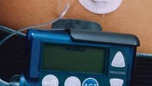 Investigadores temem que pacemakers sejam pirateados